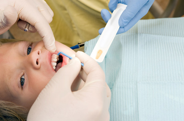 Young boy receiving fluoride treatment at Irvine Dentistry.